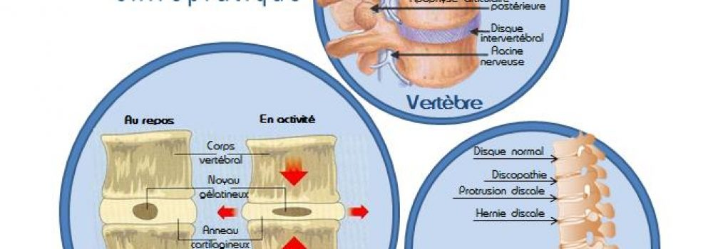 Qu'est-ce qu'une hernie discale ?